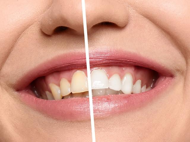 6 وصفات سحرية لتبييض الاسنان
